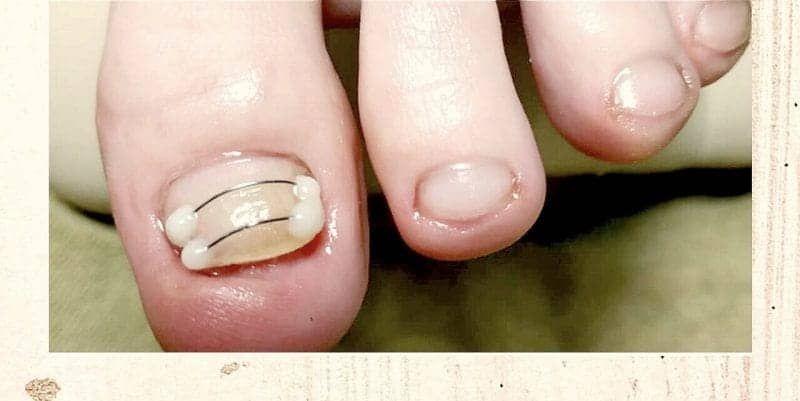 врослі нігті для салонів Ніка та Африка