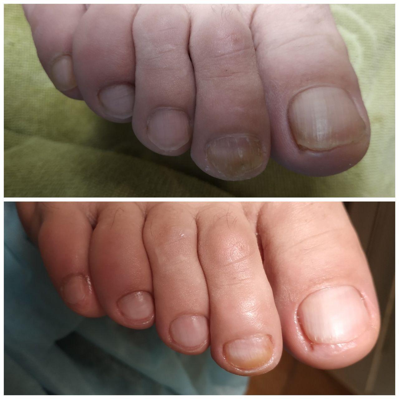 врастает ноготь на большом пальце ноги в салонах Ника и Африка