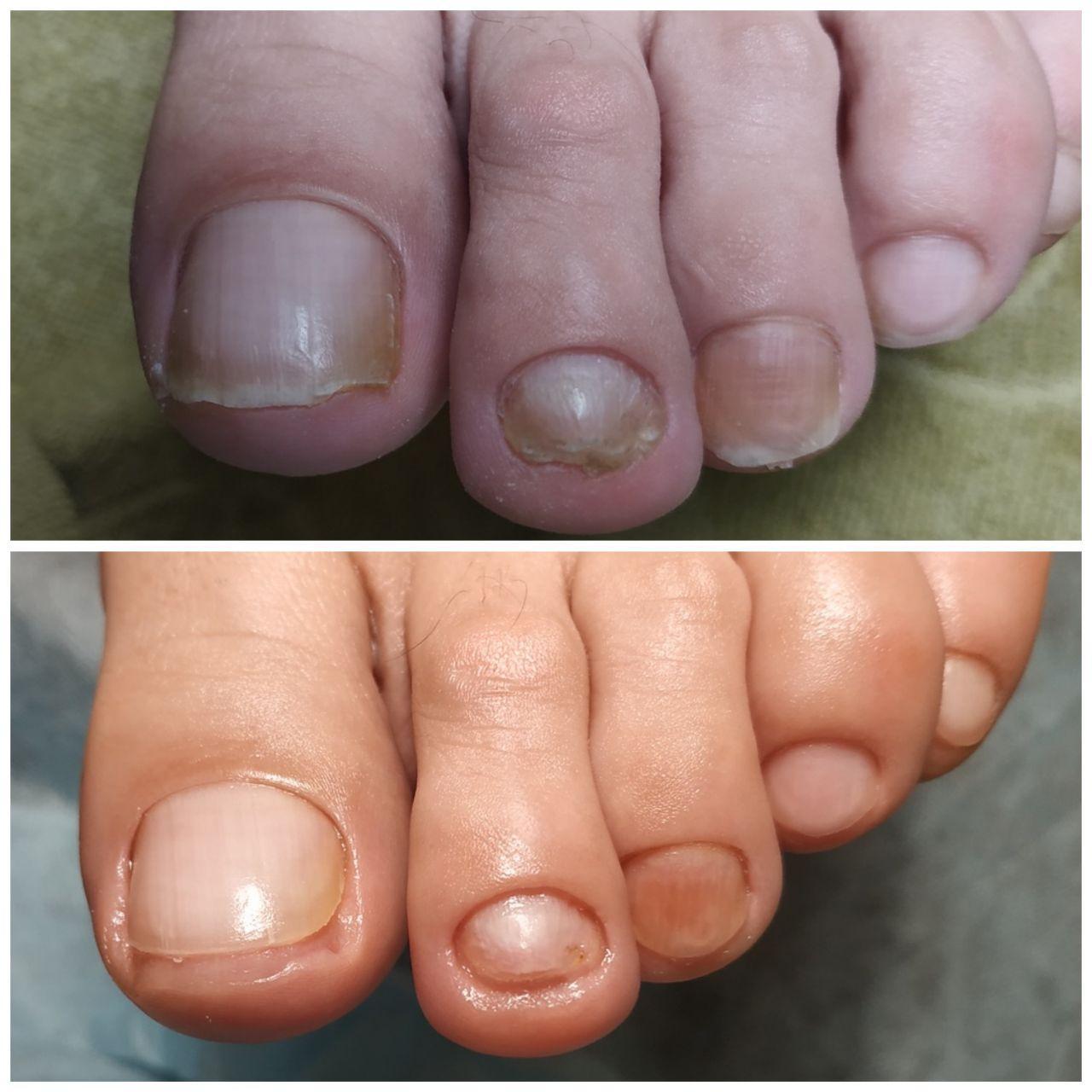 скобы на ногти в салонах Ника и Африка
