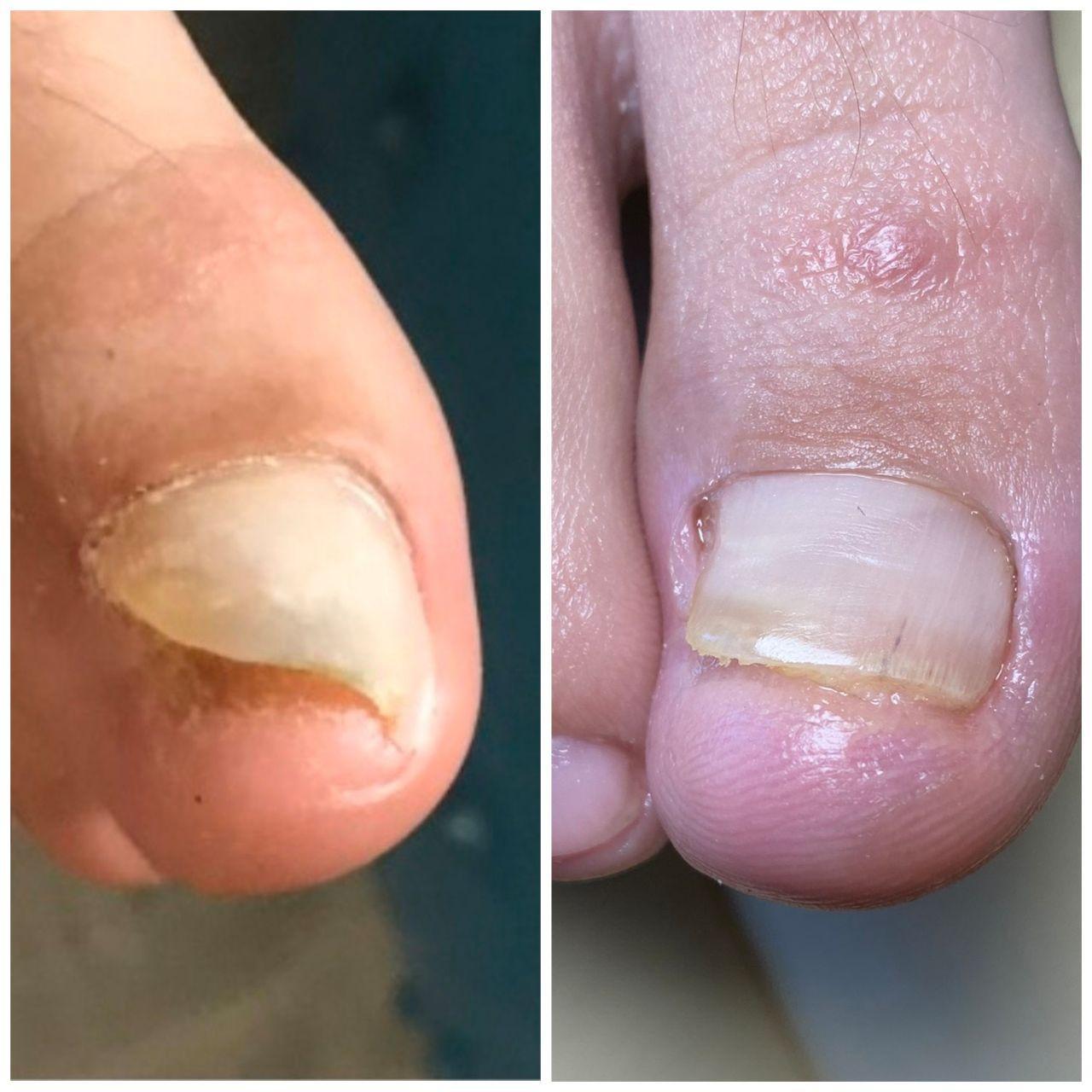 врастание ногтя в салонах Ника и Африка