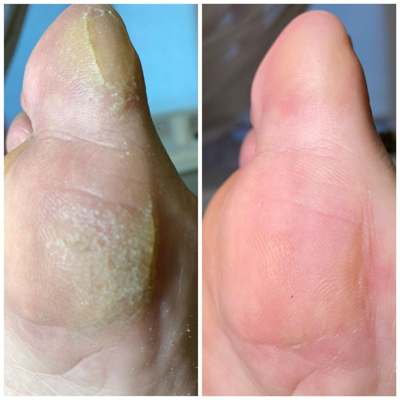 врослий ніготь на великому пальці ноги в салонах Ніка і Африка