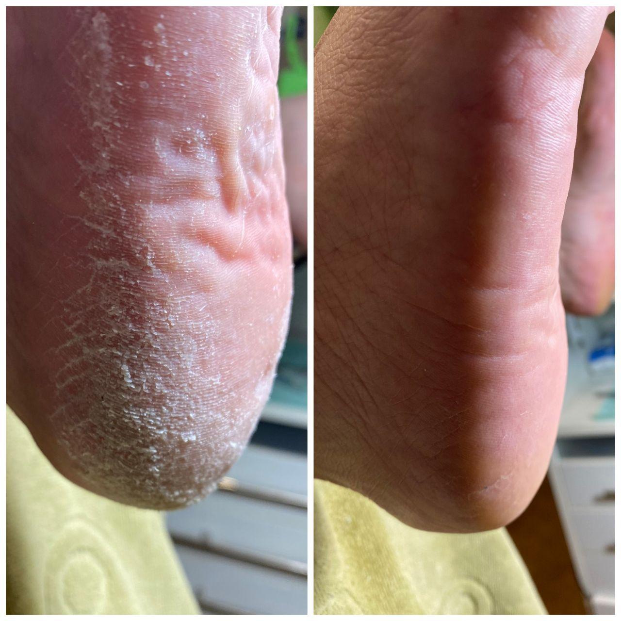 удаления вросшего ногтя в салонах Ника и Африка