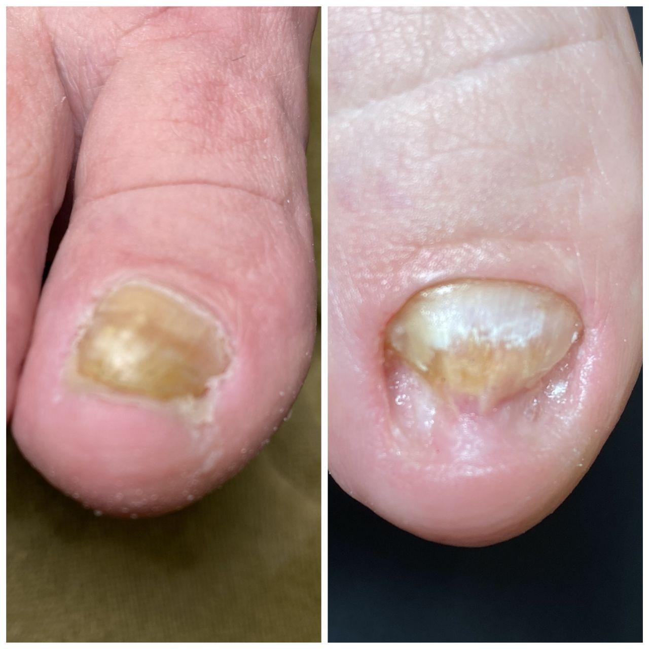 вростає ніготь на великому пальці ноги в салонах Ніка і Африка