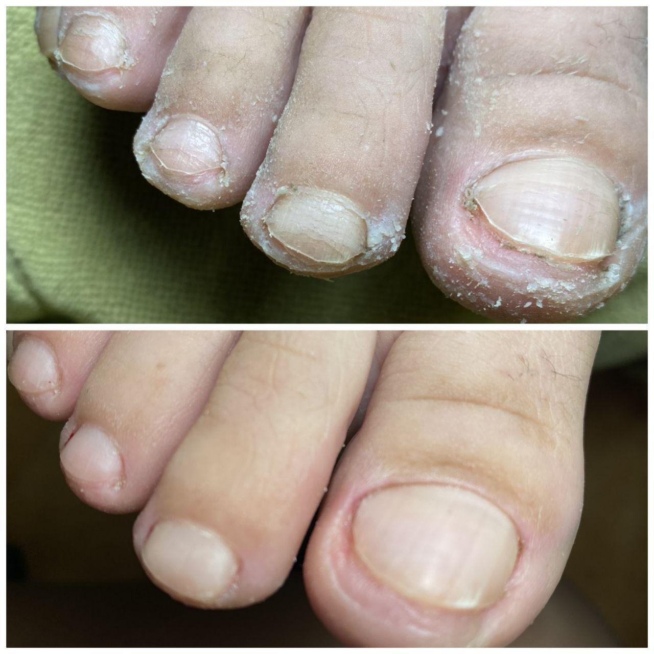 вросший ноготь на большом пальце ноги в салонах Ника и Африка