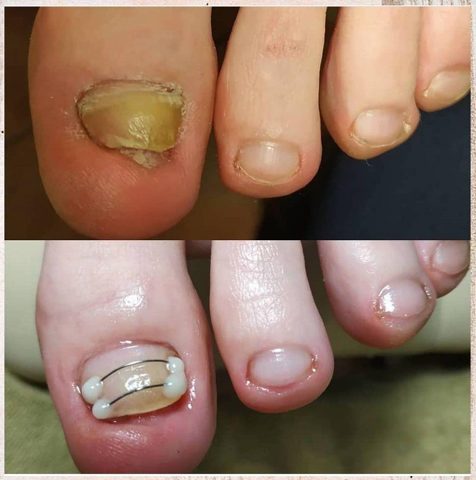 вросшие ногти на ногах