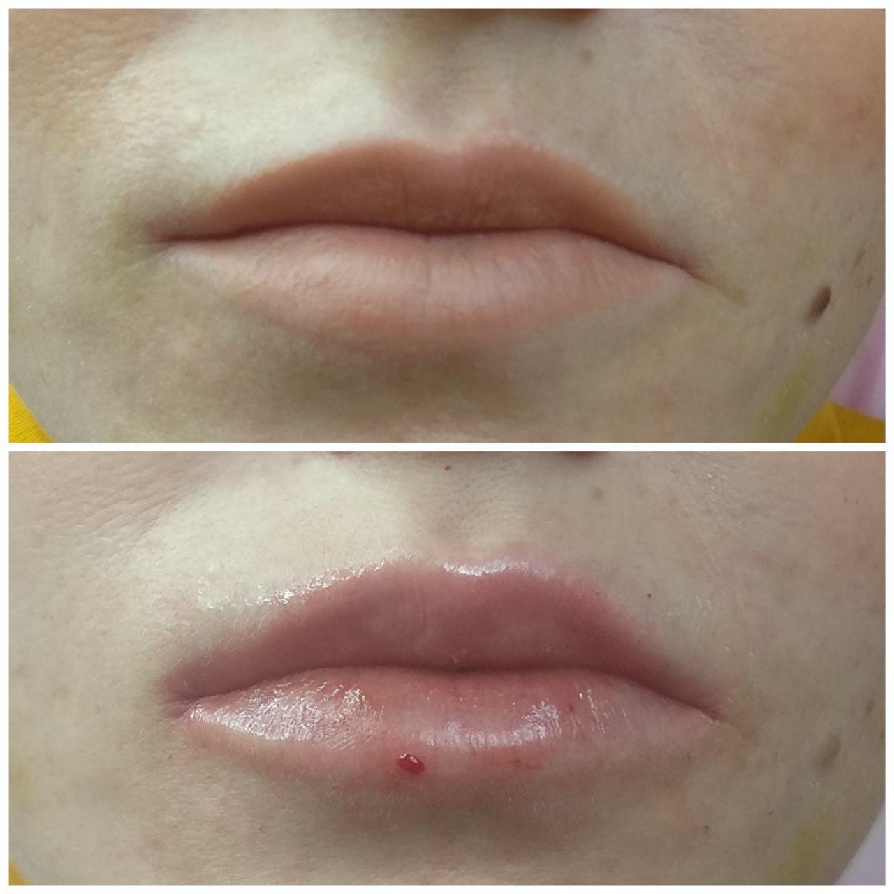 формы губ для увеличения