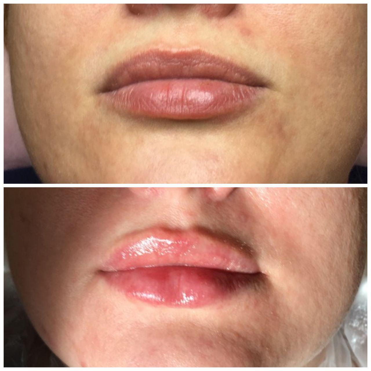 корекція форми губ