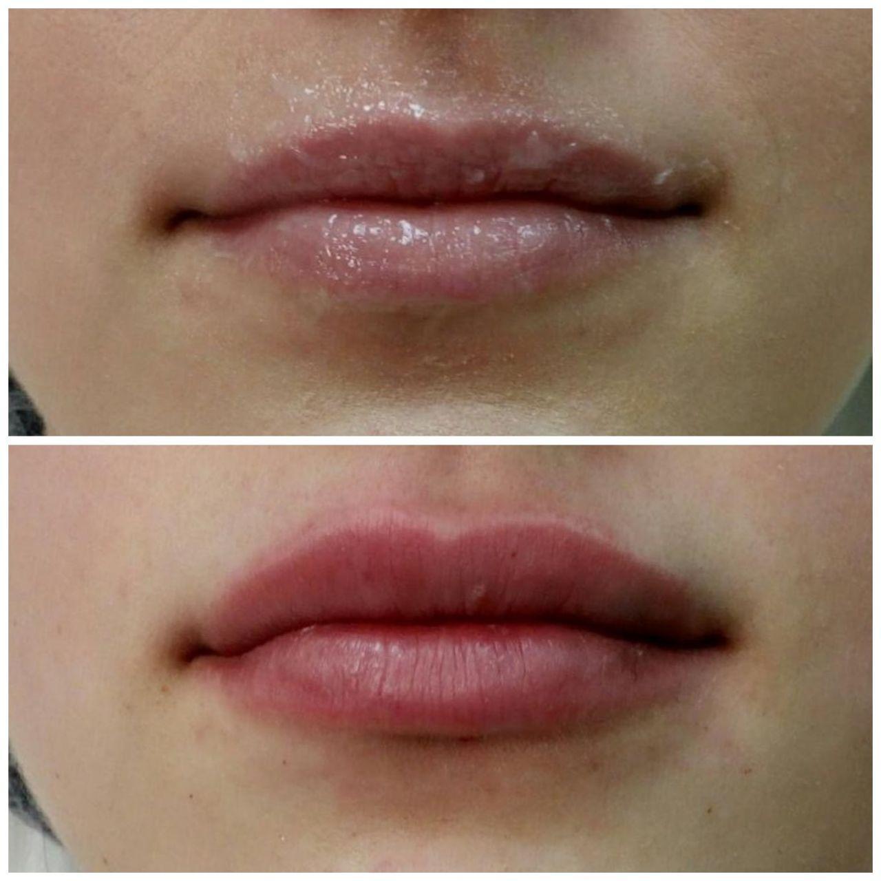 увеличение губ гиалуроновой кислотой цена