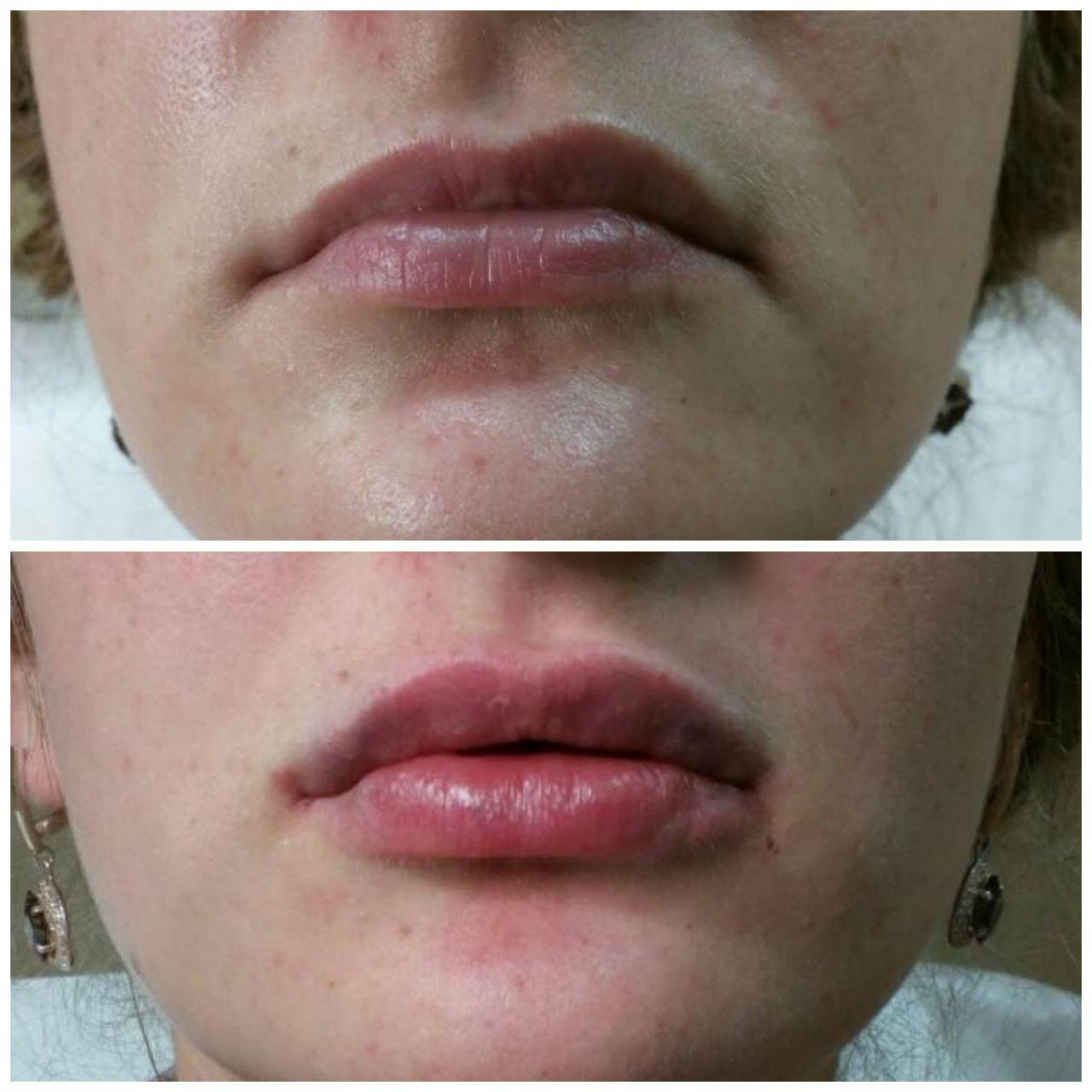 цена увеличения губ