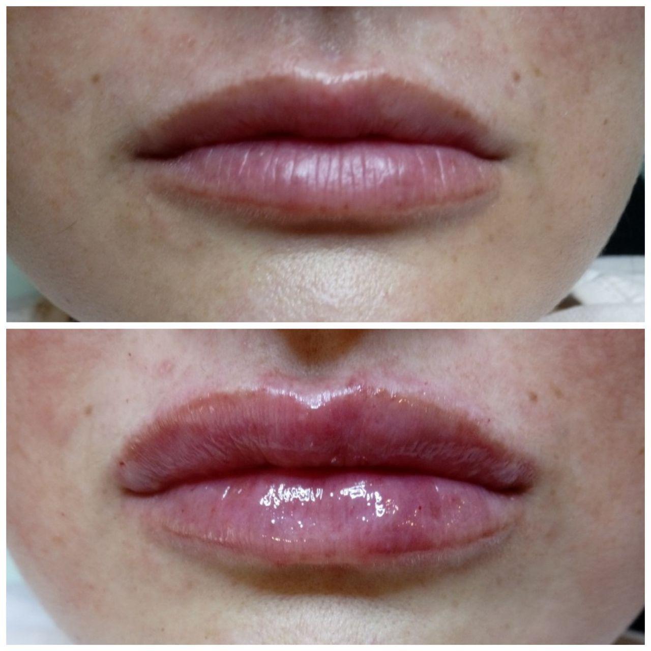 форма губ збільшення