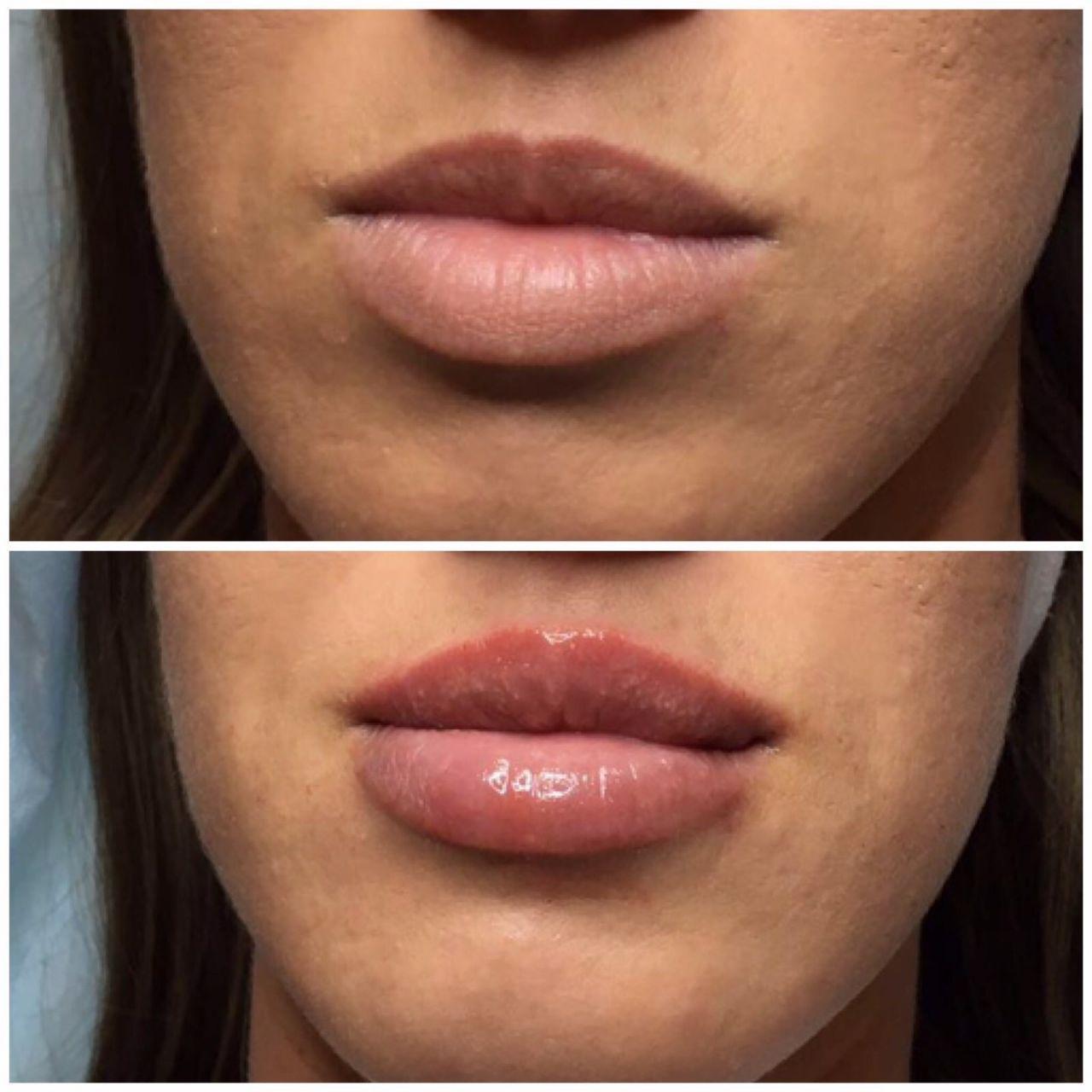стоимость увеличения губ