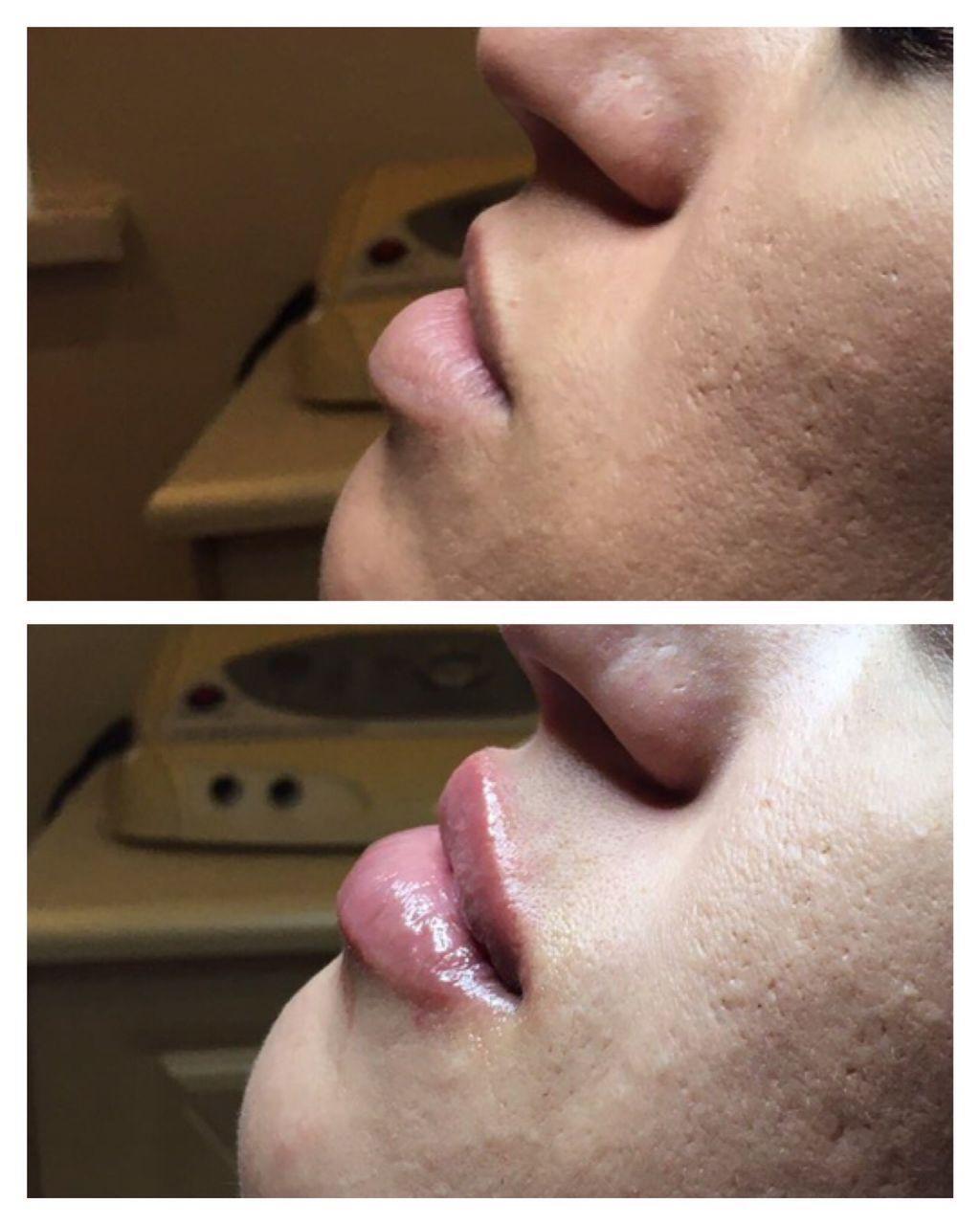 коррекция губ цена