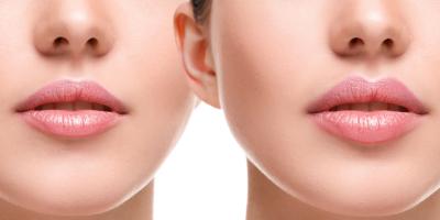 контурна пластика губ ціна дивує в салонах Ніка та Африка